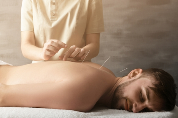 How You Can Find The Best Acupuncture In Denver