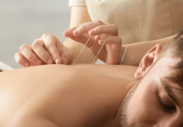 The Benefits Of Acupuncture: A Complete Guide